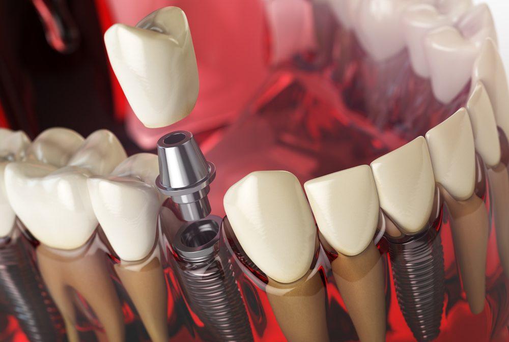Implante2-e1566248994924