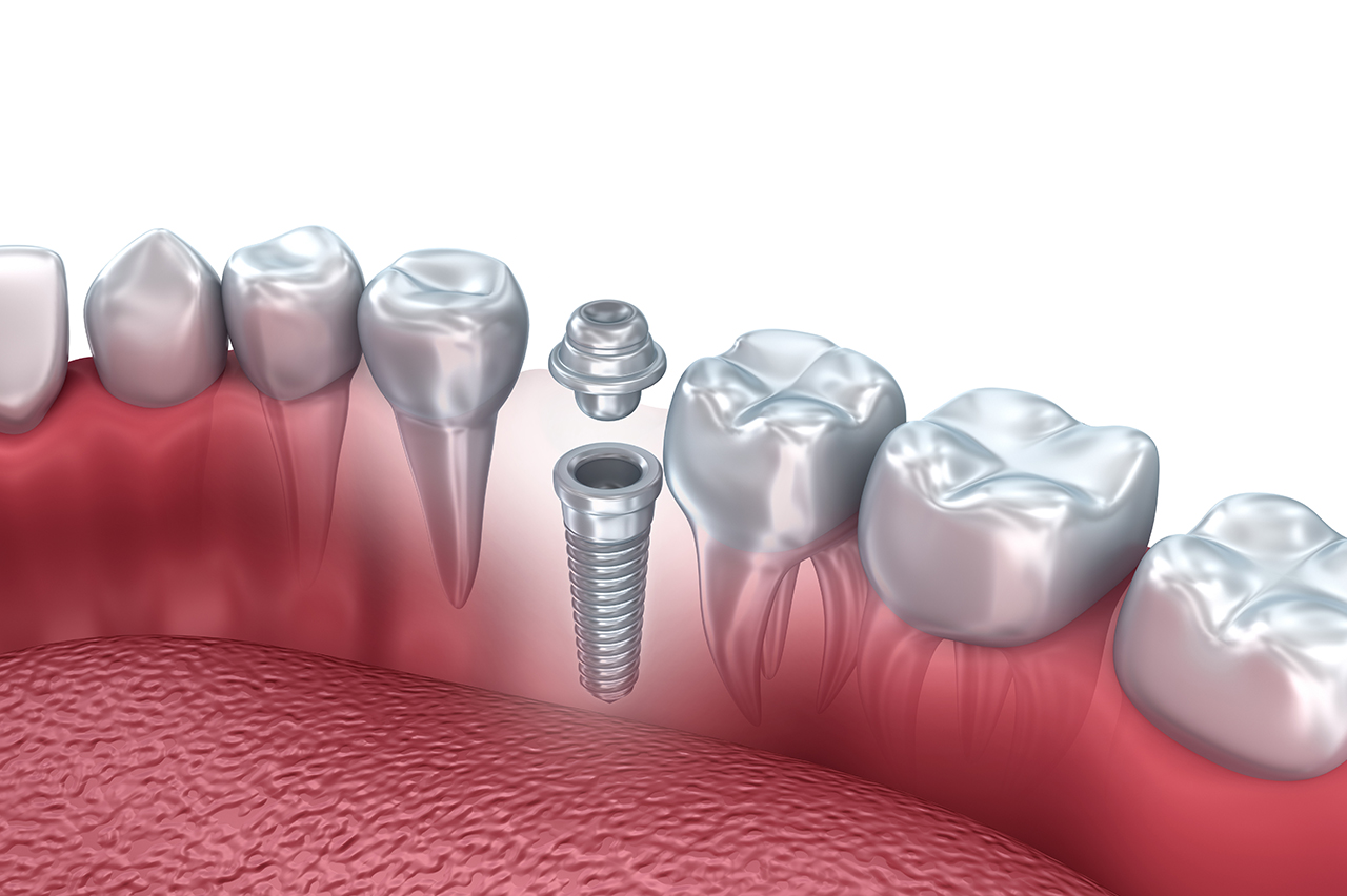 Immed_implants